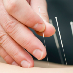 Acupuncture Could Relieve Your Holiday Stress