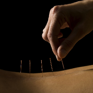 WHO Says Acupuncture Works