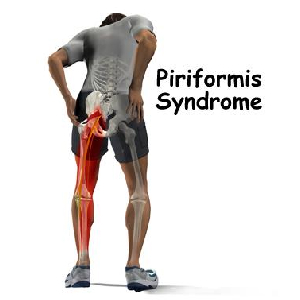 Your Lower Back Pain Or Sciatica Might Actually Be Piriformis Syndrome